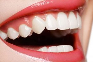 Cedar City teeth whitening